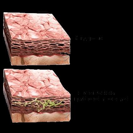 Номидол от грибка
