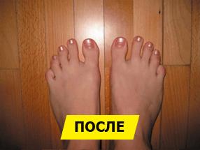 Крем Шишка Стоп