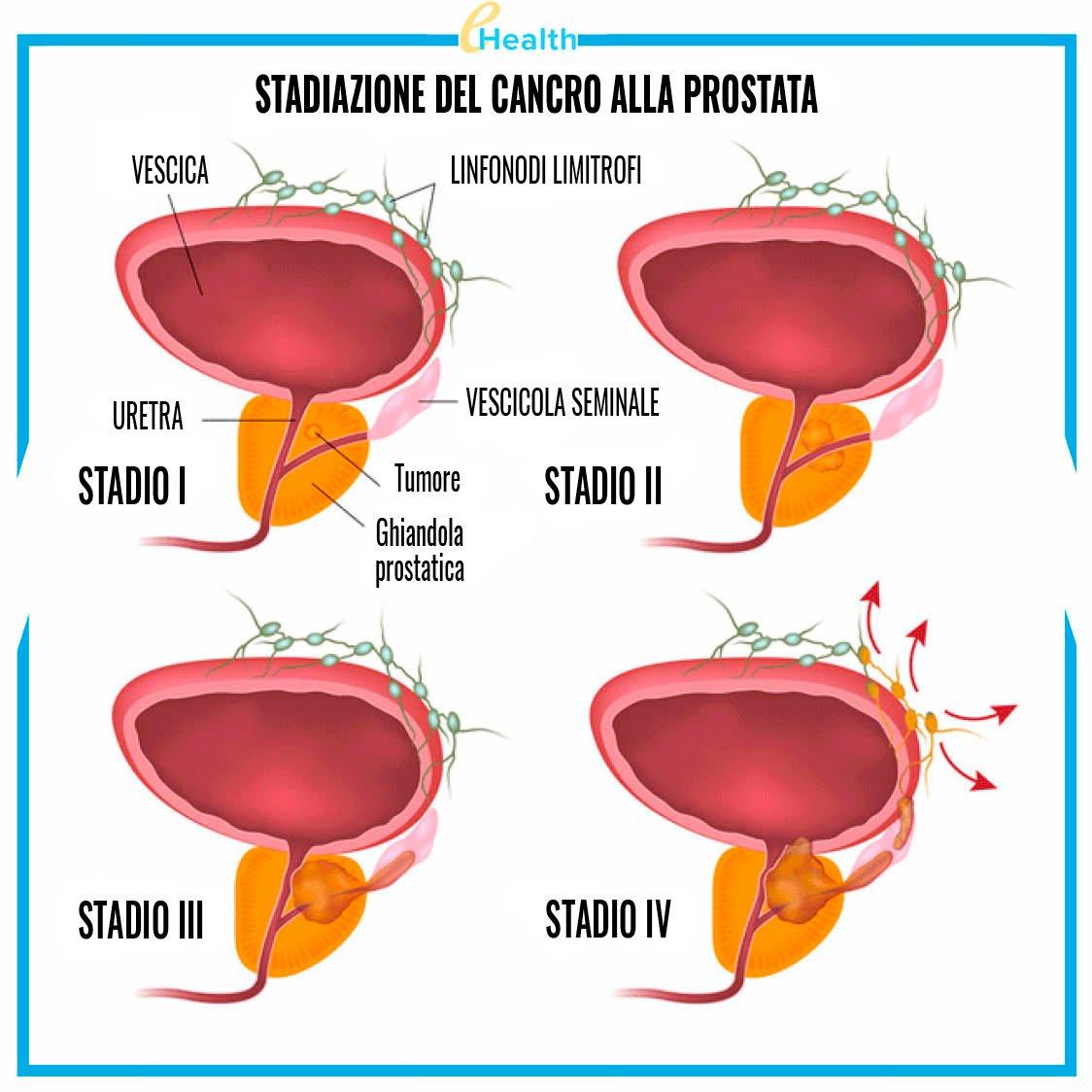 prostata ingrossata o tumore