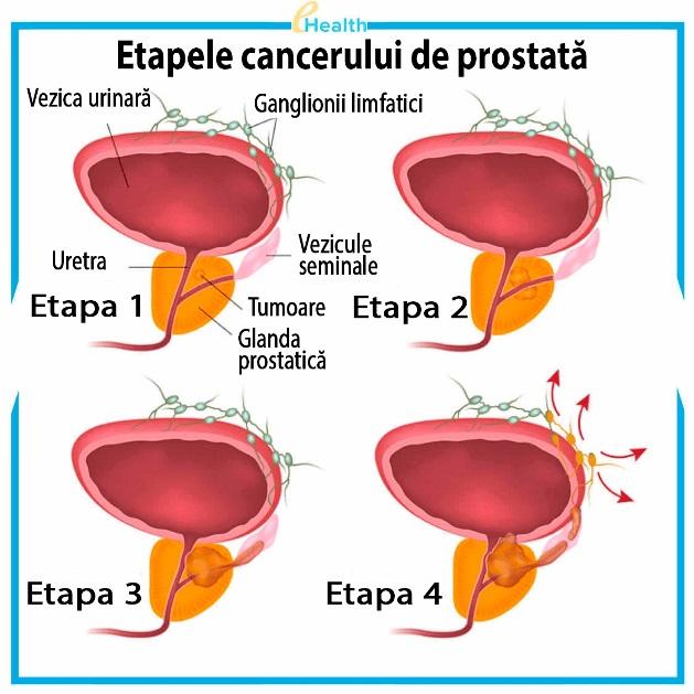 Tratamentul prostatitei mijloace: cele mai eficiente metode de