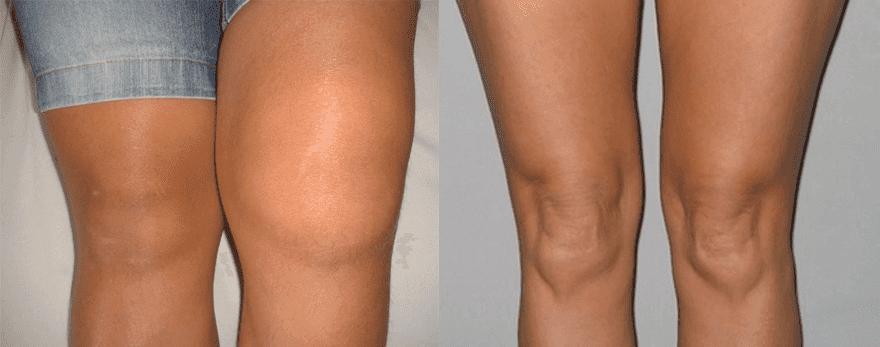 La 45 de ani, articulațiile doare, Deteriorarea articulației încheietura mâinii drepte
