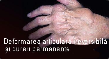 mușcă durerea articulară cum se vindecă durerile musculare și articulare