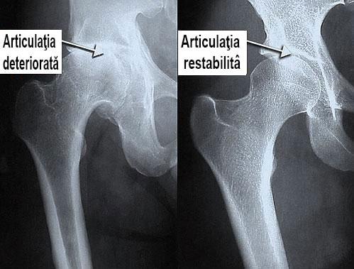 escroci de artropant