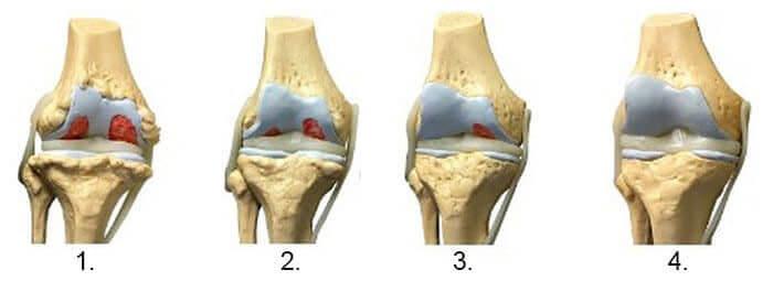 picioare umflate remedii rapide