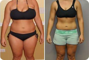 липоевая для похудения отзывы вчера