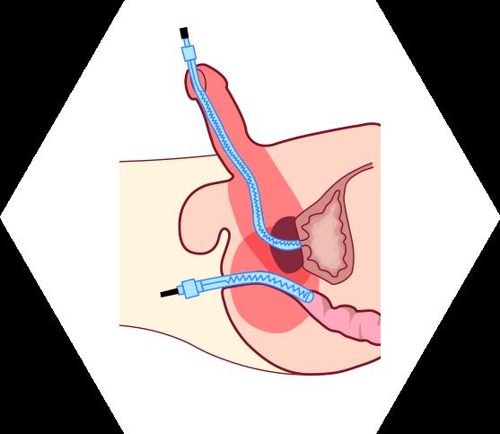 Беременность при везикулите и простатите газы из за простатита
