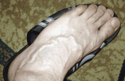 Лекарство для сосудов ног список таблеток уколов капельниц для лечения варикоза