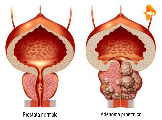 adenoma prostatico grado 3
