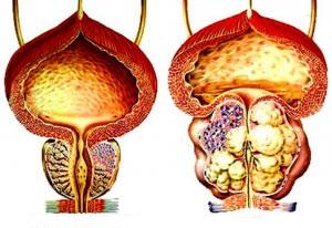 Lipsa erectie dimineata, erectie spontana & ejaculare rapida.